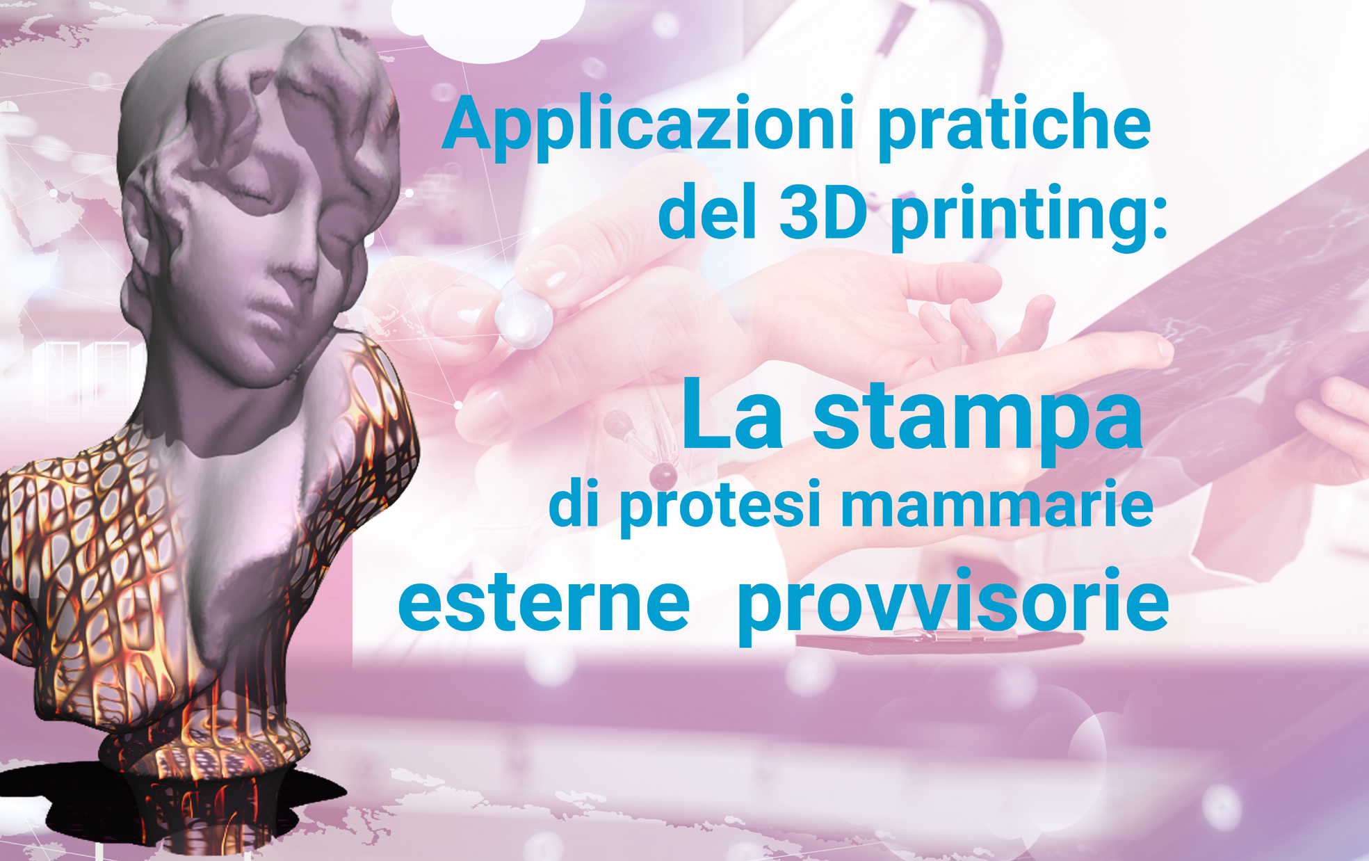Applicazioni pratiche del 3D printing:La stampa di protesi esterne mammarie provvisorie